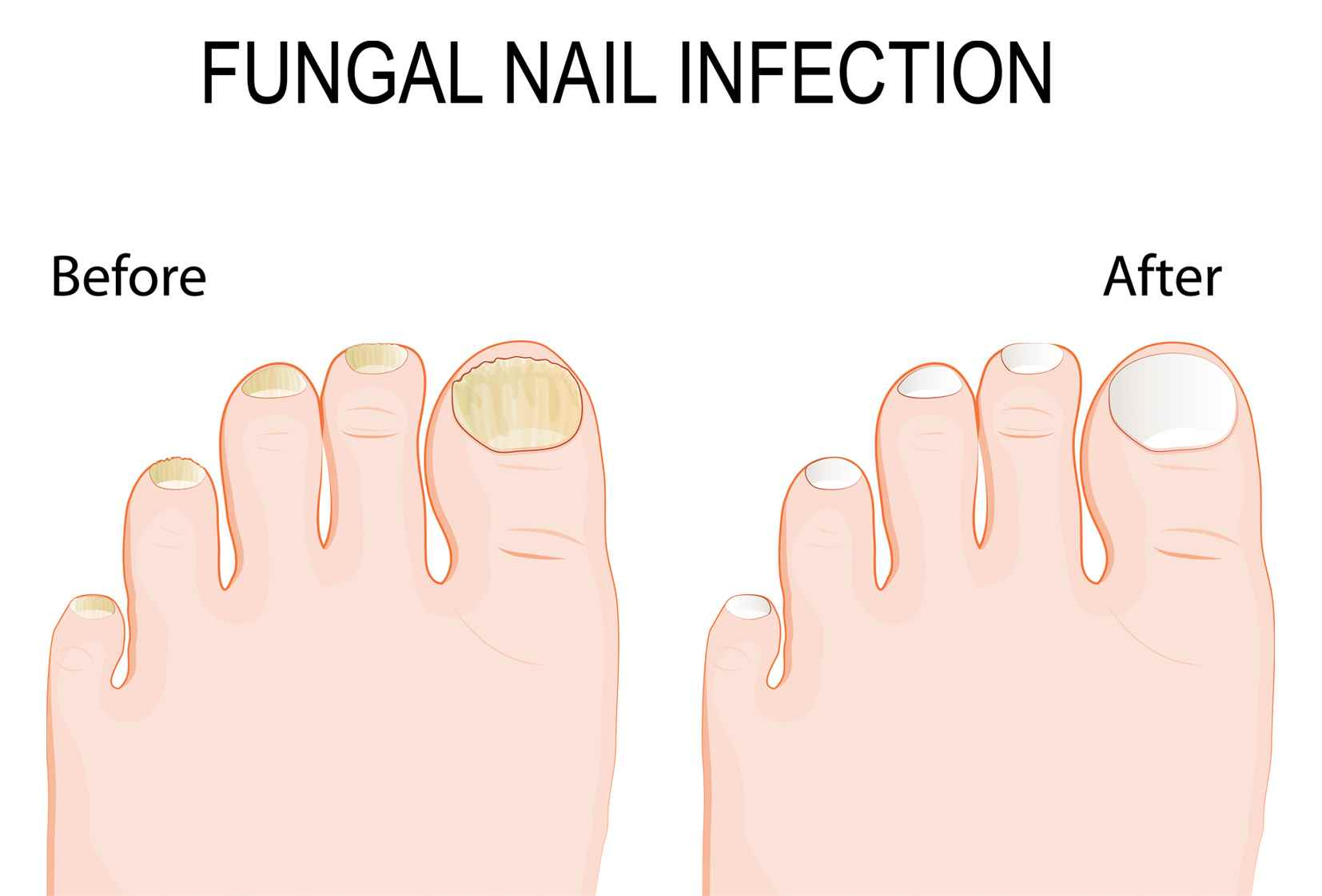 Toenail Fungus