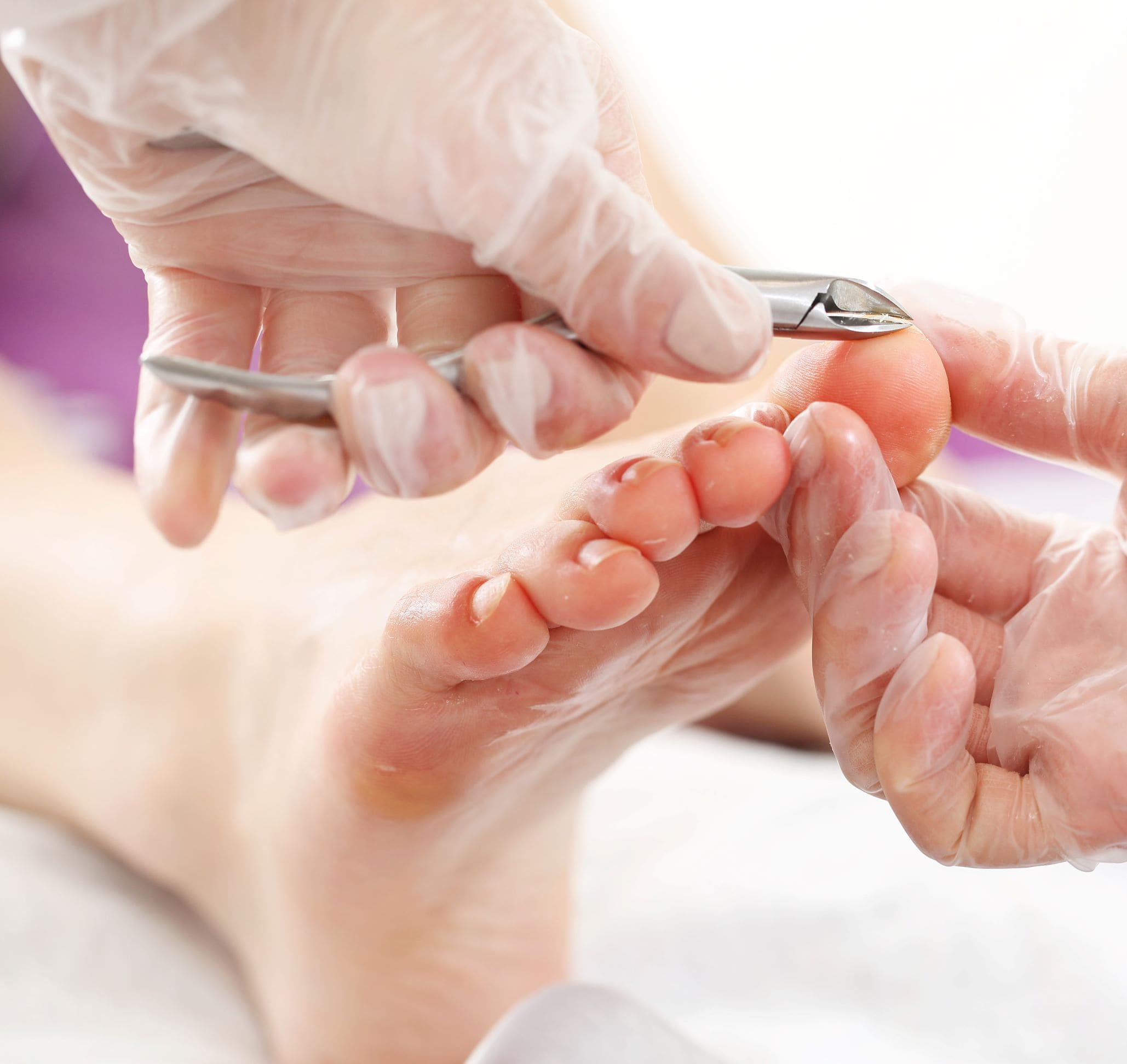 Clipping Toenails for Foot Care